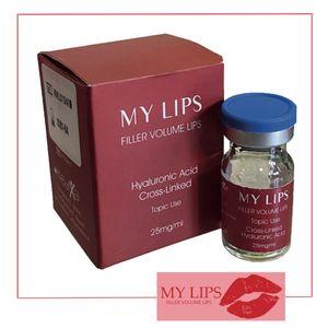 My Lips - Filler Volume Lips 25Mg/Ml Confezione 3 Ml